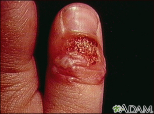 Herpetic whitlow is a viral finger infection that is caused by the herpes simplex virus (HSV). This infection is often extremely painful and like any other skin infection, highly contagious. Finger herpes or hand herpes gets easily transmitted by dir